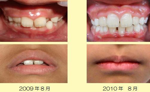マウスピース型、拡大床型の装置を利用して歯並びを改善した症例