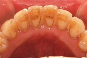 歯垢や歯石