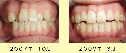 床矯正装置を利用して歯並びを整えた症例